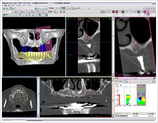 CT画像を元にシミュレーションができます